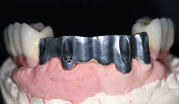 implant_bridge-0cffc31297